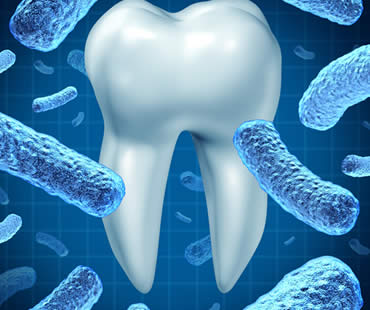 Causes and Effects of Gingivitis
